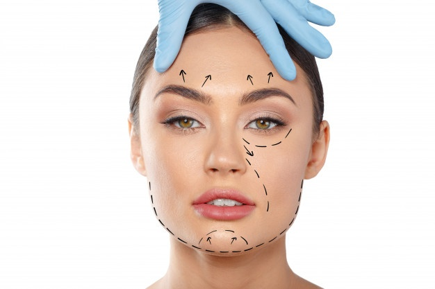 remodelare faciala